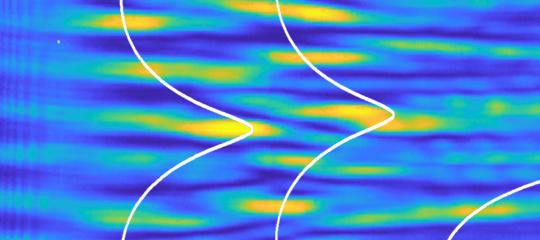 È stata spiegata e verificatal'origine fisica deidéjà-vu